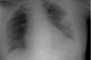 今天更新新式肺炎治疗相关专业内容合集