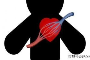 心脏放了支架后还能活多久心脏支架有没有副作用