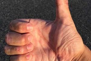 指甲变得凹凸不平的原因指甲变得凹凸不平怎么办